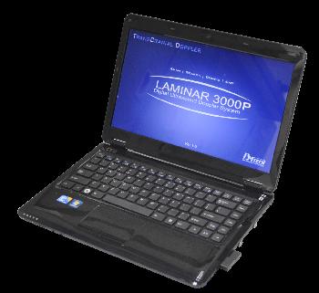 Digital Ultrasound Doppler System