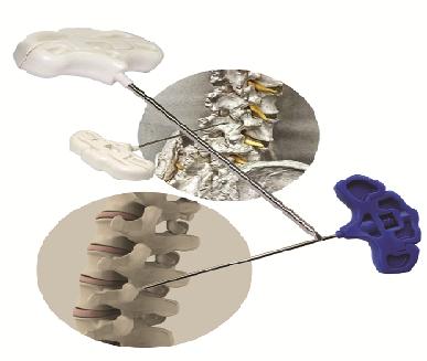 Verterbroplasty Needle