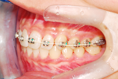 Orthodontic Bio poly coated Aesthetic Silver Archwire  Made in Korea